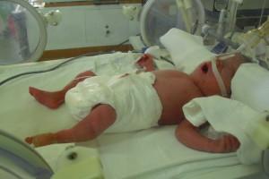 A születést követően